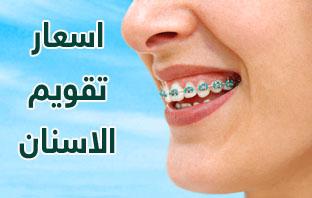 انواع تقويم الاسنان بالصور واسعارها