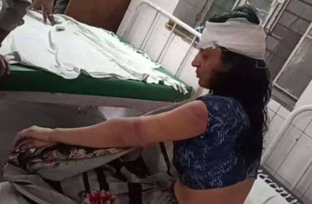 अटैची से 20 हजार रुपए निकालने पर पति ने की पत्नी की बेरहमी से पिटाई