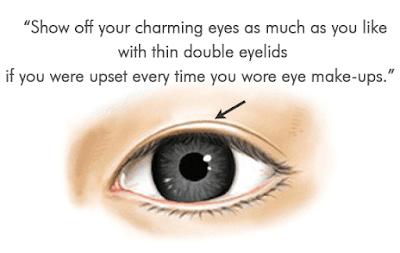 Eyelid Surgery Wonjin Plastic Surgery That Suits Me The Best