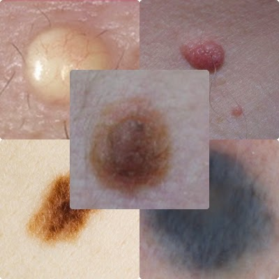 Different types of moles on skin not pleasant