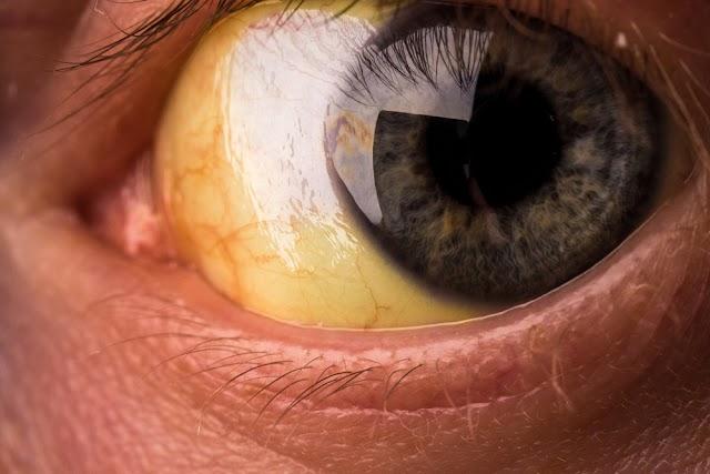 Mengenal Lebih Dekat Dengan Penyakit Kuning