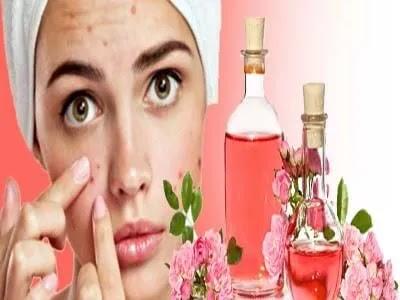 استخدام ماء الورد لعلاج حب الشباب