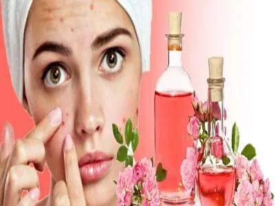كيفية استخدام ماء الورد لعلاج حب الشباب
