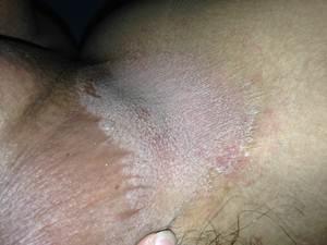 Obat Ampuh Gatal Gatal Bruntus Pada Sekitar Selangkangan