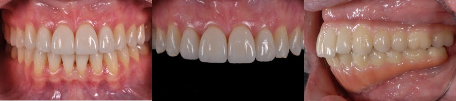 Dental Photography Pearls For Better Images Instantly