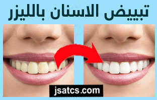 اسعار تبييض الاسنان بالليزر في الرياض