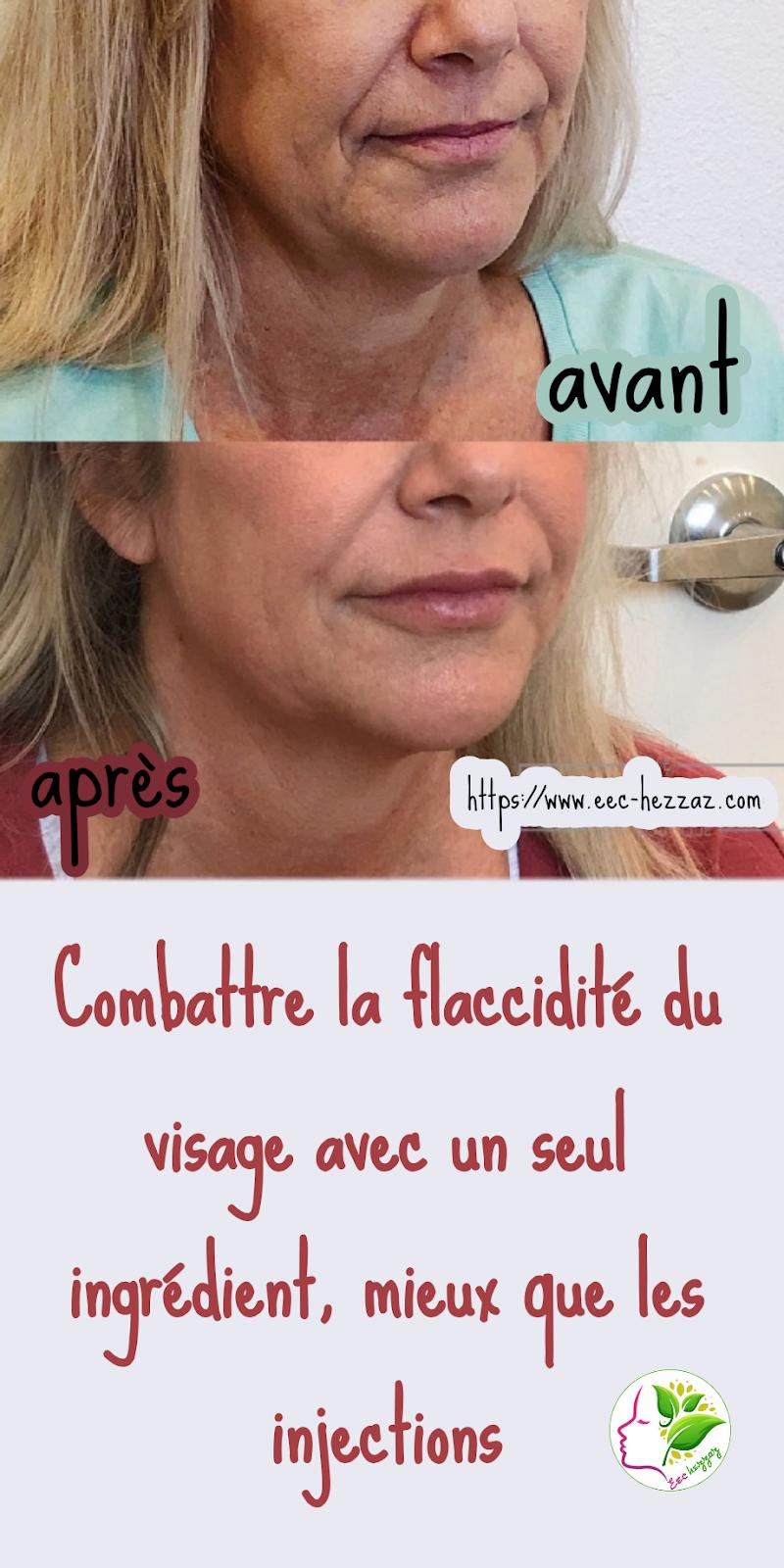 Combattre la flaccidité du visage avec un seul ingrédient, mieux que les injections
