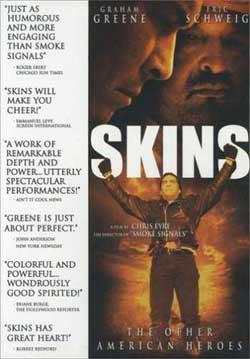 Skins (2002)