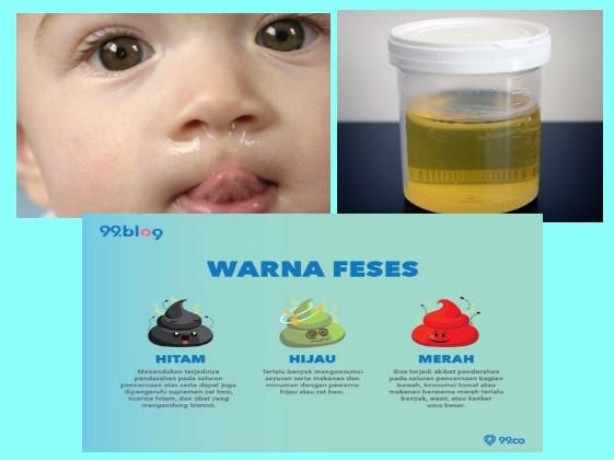 ingus disebut juga mukos, urin normal berwarna kuning atau jernih, warna feses menunjukkan kesehatan