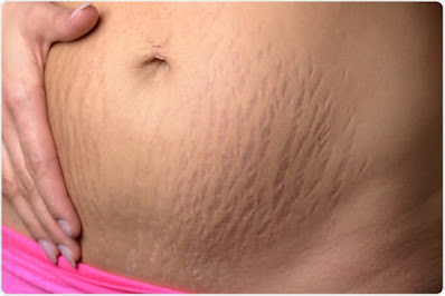 stretch marks treatment