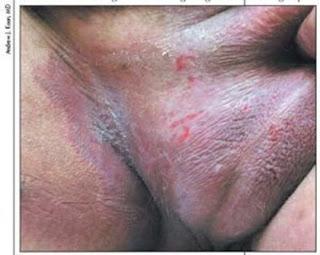 Obat Gatal Pd Ketiak, obat gatal untuk telapak kaki, obat gatal badan secara alami, obat eksim paling ampuh, bekas gatal eksim kering, cara menyembuhkan penyakit gatal eksim pada kulit, penyakit eksim atau menghaluskan kulit dapat menggunakan produk kesehatan dari bahn hewani yaitu