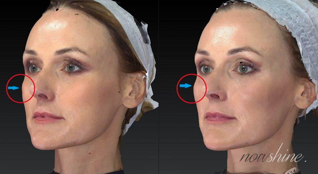 3D Bild Vorher Nachher Hyaluronbehandlung Restylane