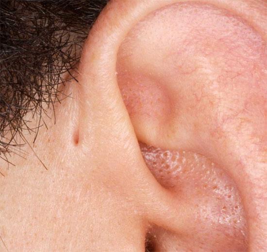 Fístula pré-auricular - Img 3