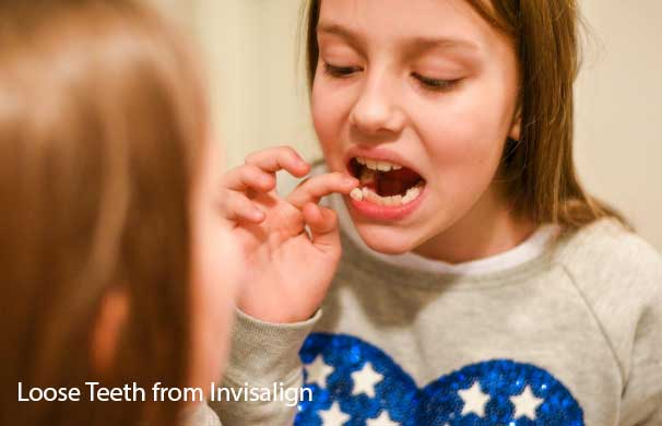 Why Loose Teeth From Invisalign?