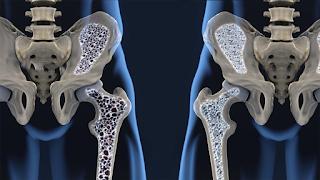 Saiba mais sobre a Osteoporose