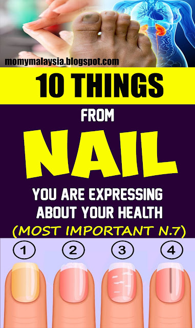 Here Are 10 Things Your Nails Can Reveal About Your Health!!!