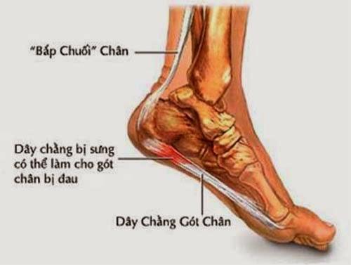 Mẹo chữa bệnh đau gót chân