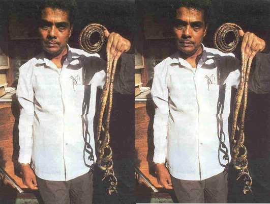 Man With World's Longest Fingernails Final Cut His Nails After 66 years