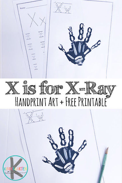 X is for Xray Hand art and free Letter X Worksheets - Such a simple, fun, and cute alphabet craft perfect for any letter of the week curriculum. #alphabet #kindergarten #craftsforkids #handprintart