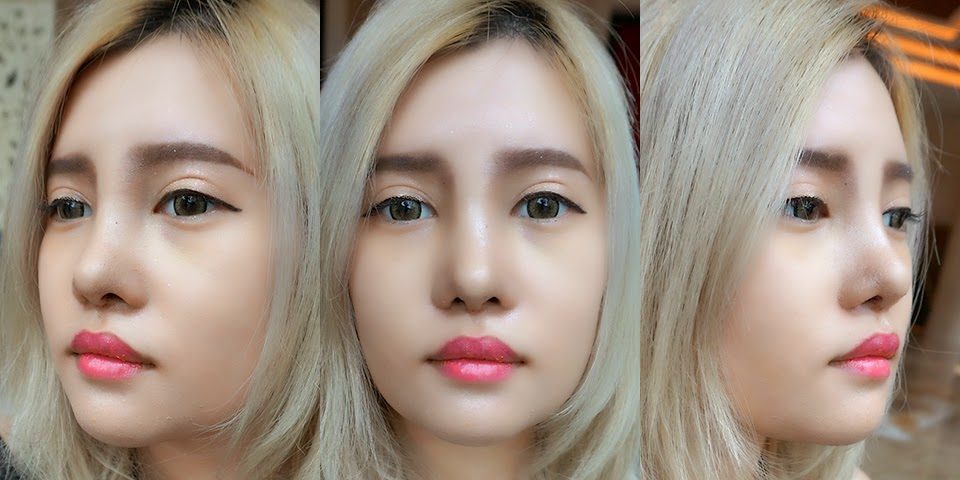 My Plastic Surgery in South Korea - Stella Lee ☆ Indonesia Beauty