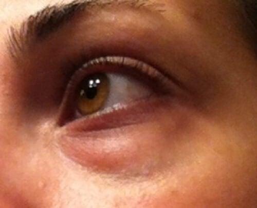 Cách trang điểm che bọng mắt hiệu quả cho chị em