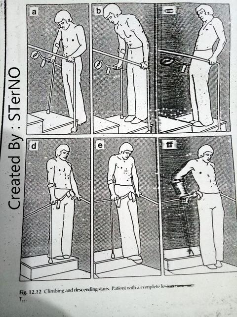 latihan di paralel bar untuk kelumpuhan kaki