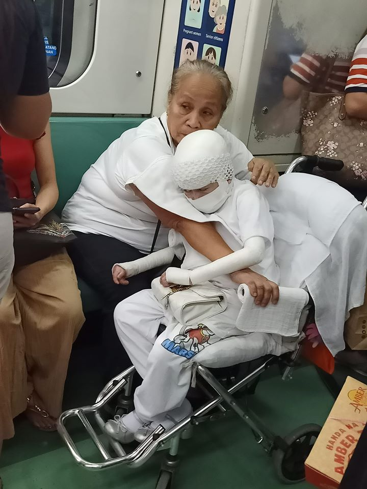 Lola rides LRT with wheelchair-bound child wrapped in bandages