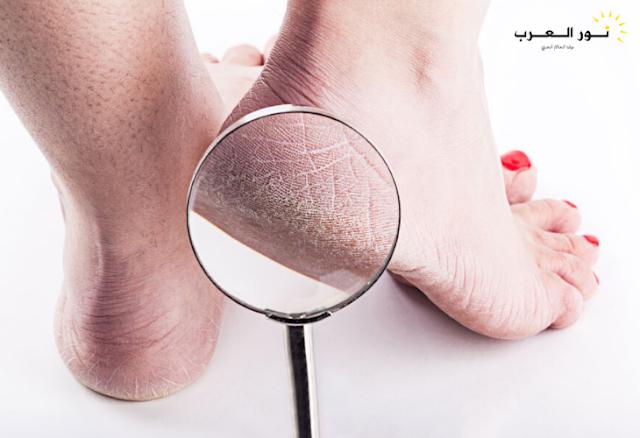 4 علاجات منزلية لتشقق القدمين والحصول على أقدام ناعمة