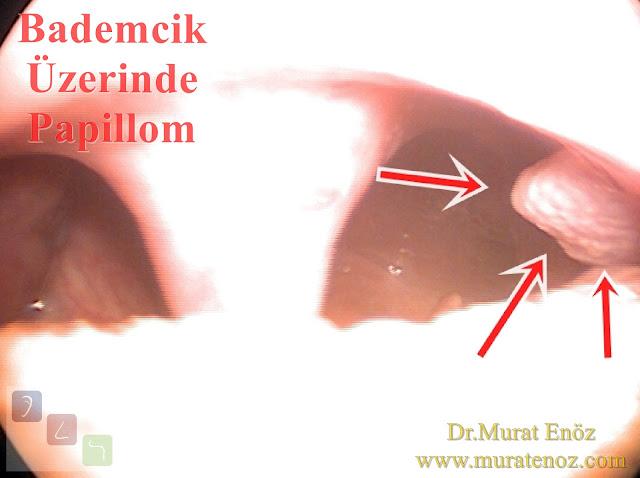 Bademcik papillomu - Bademcik üzerinde siğil - Boğazda siğil - Ağızda HPV enfeksiyonu - Bademcik papillomu foto