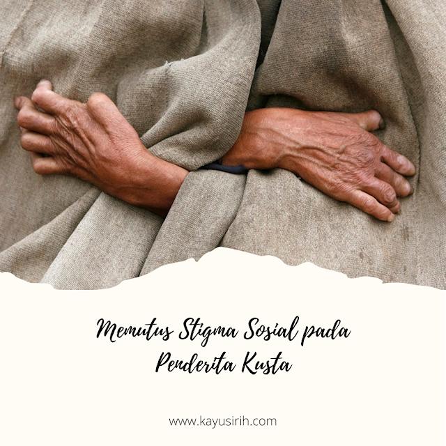 Memutus Stigma Sosial pada Penderita Kusta