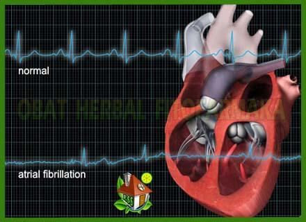 detak jantung sehat, detak jantung sakit, penymbatan pembuluh darah jantung