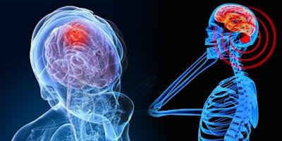 Faktor-Faktor Pemicu Kanker Otak