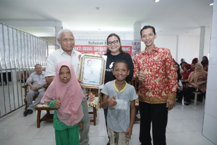 Bupati Asahan Hadiri Baksos Operasi Bibir Sumbing Sambut HUT PPNI ke-46