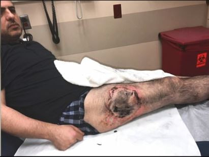 Man Suffers From Third -Degree Burn on His Thigh After His LGHG2 Battery in His Right Pocket Burst Into Flames