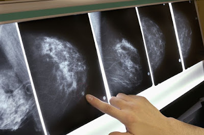 mammography in chennai