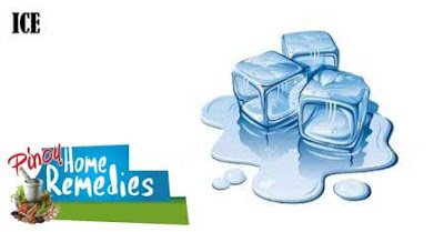 Home Remedies For Mucocele (Mucous Cyst): Ice
