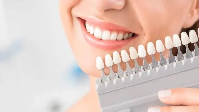 أفضل 9 طرق لتبييض أسنانك بالمنزل كالإختصاصيين..