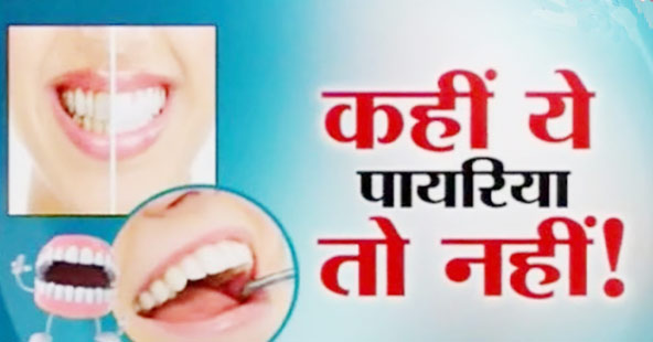 Pyorrhea Home Remedy in Hindi