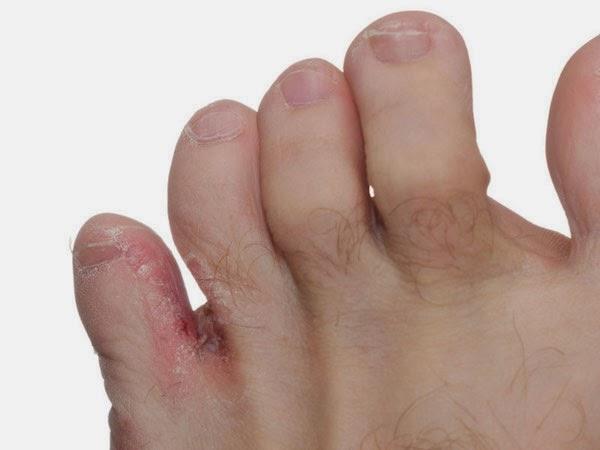ciuperca piciorului este o infectie micotica problematica