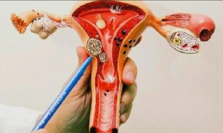 女人要明白的事_最傷害卵巢的事情,是女人一定要看,這是一輩子的事!