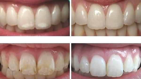 intareste si remineralizeaza dintii