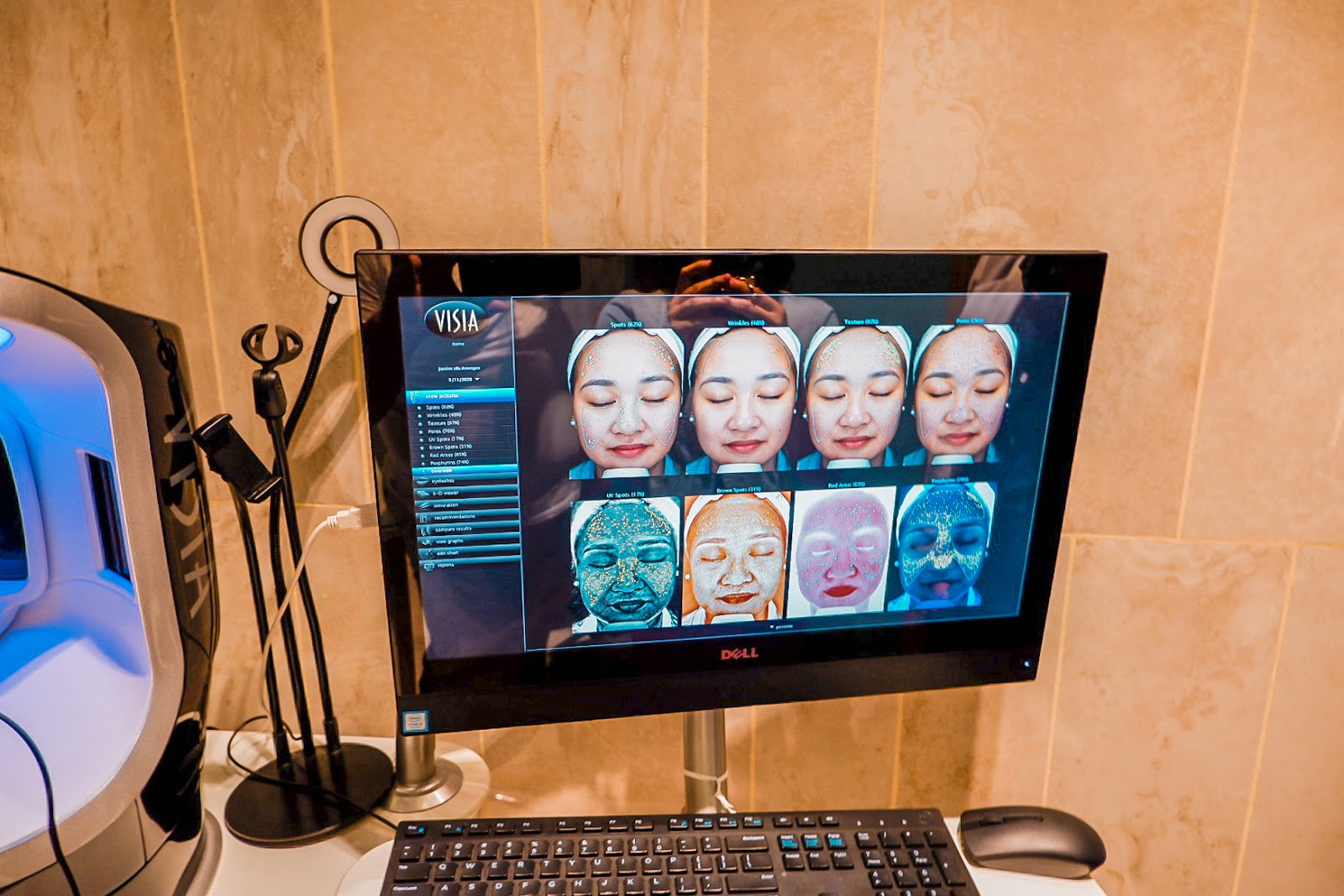 My Skin Care Game-Changing Experience at Bodyworx Medical Spa
