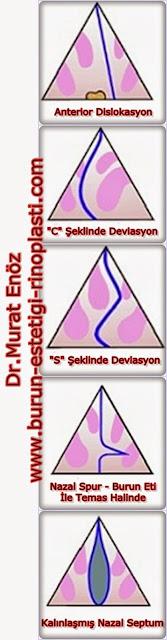 nazal septum deviasyonu türleri