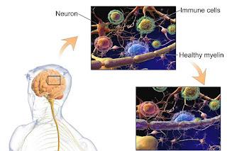 eating healthy boost IQ