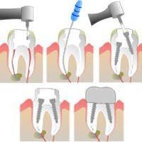 الأسنان المحورية (الأسنان المحورية)