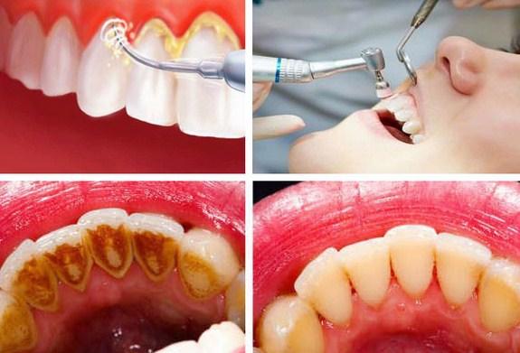 Cara Cepat Dan Aman Membersihkan Karang Gigi