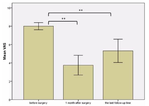 図:一次運動野刺激療法 中枢性疼痛の