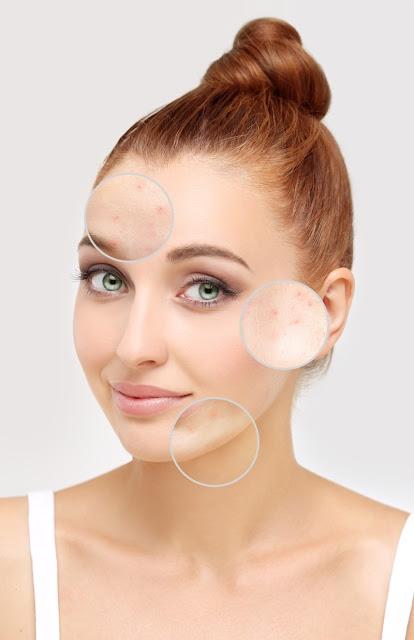 Fabriquer son propre savon apaisant spécial peau grasse
