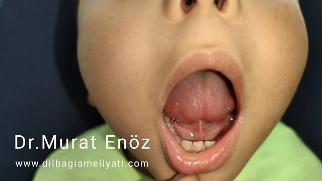 kısa lingual frenulum,dil bağı belirtileri,yetişkinlerde dil bağı,dil bağı tanımı,tongue tie,ankiloglossi,bebeklerde dil bağı,kısa dil bağı,dil bağı tedavisi,dil bağı ameliyatı,