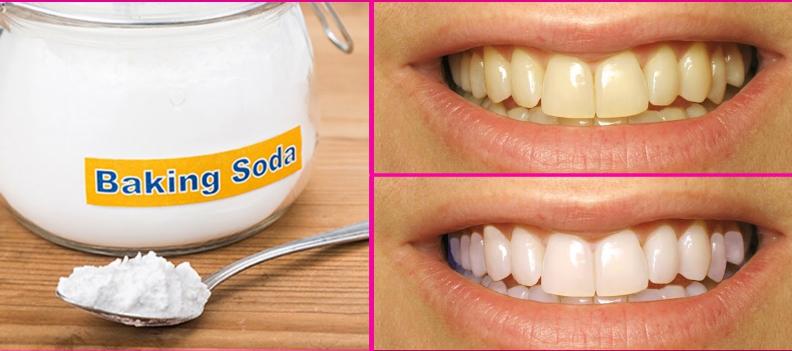 Will baking soda whiten teeth